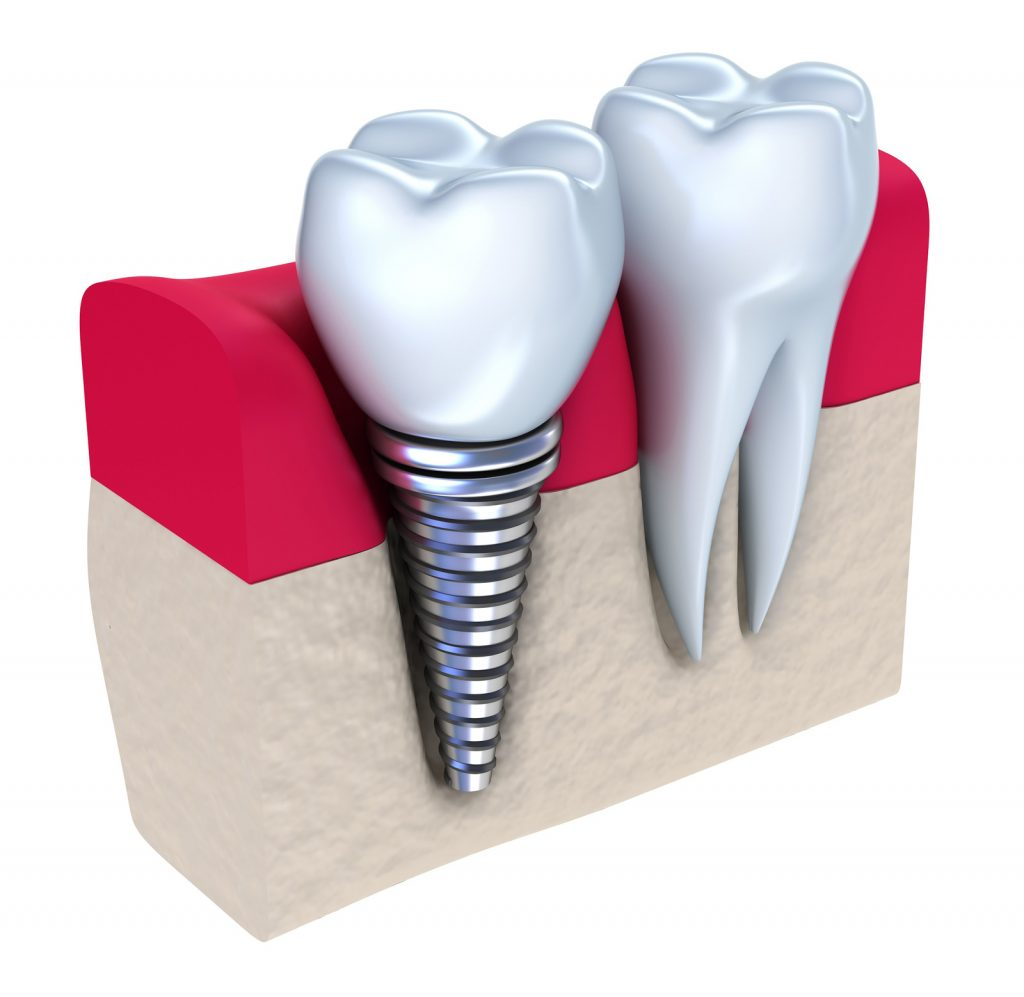 tooth implant 3D rendering that depicts a dental implant next to a normal tooth